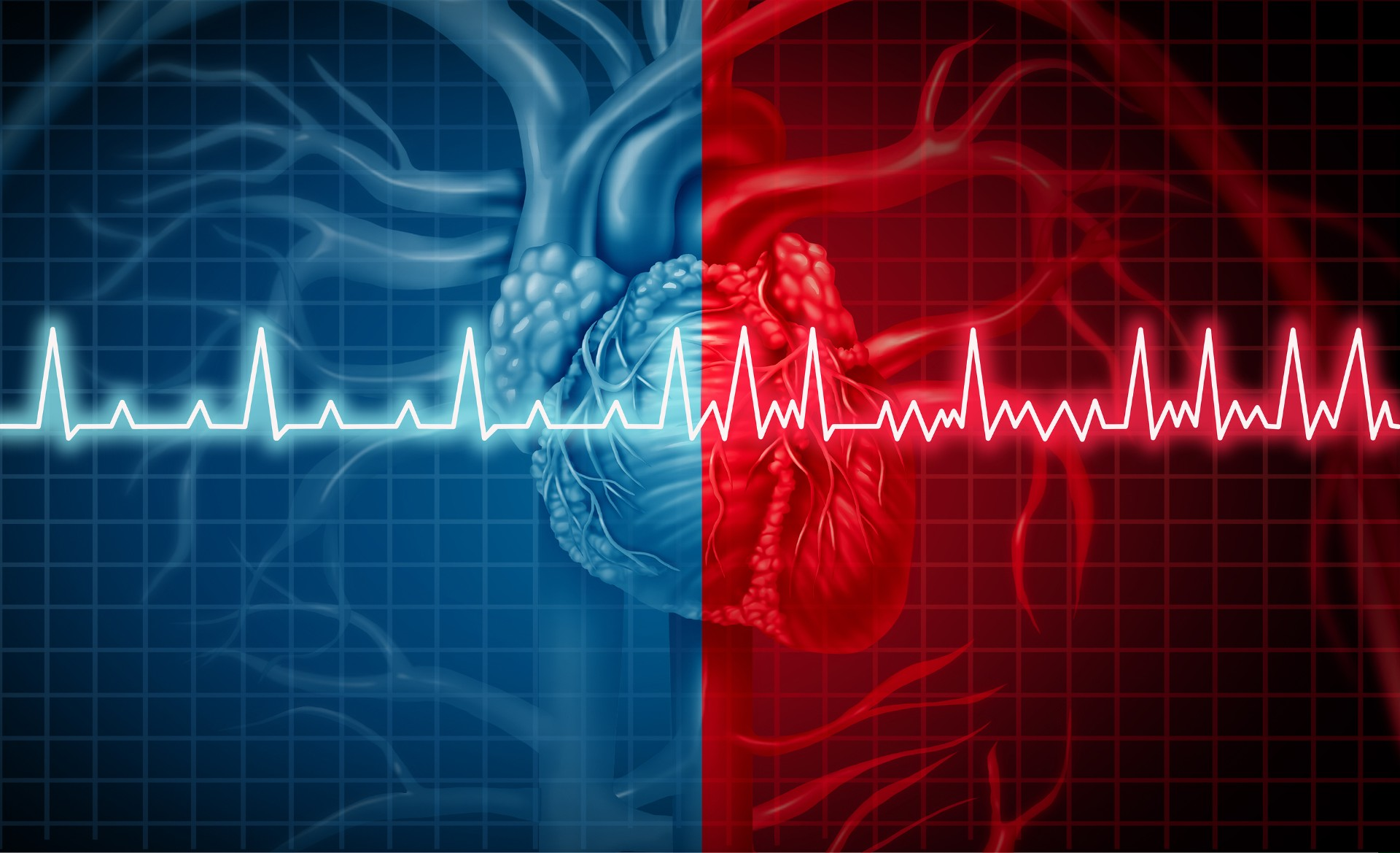 When the Heart Gets out of Control: What Is Atrial Fibrillation and How Can You Cope with It?
