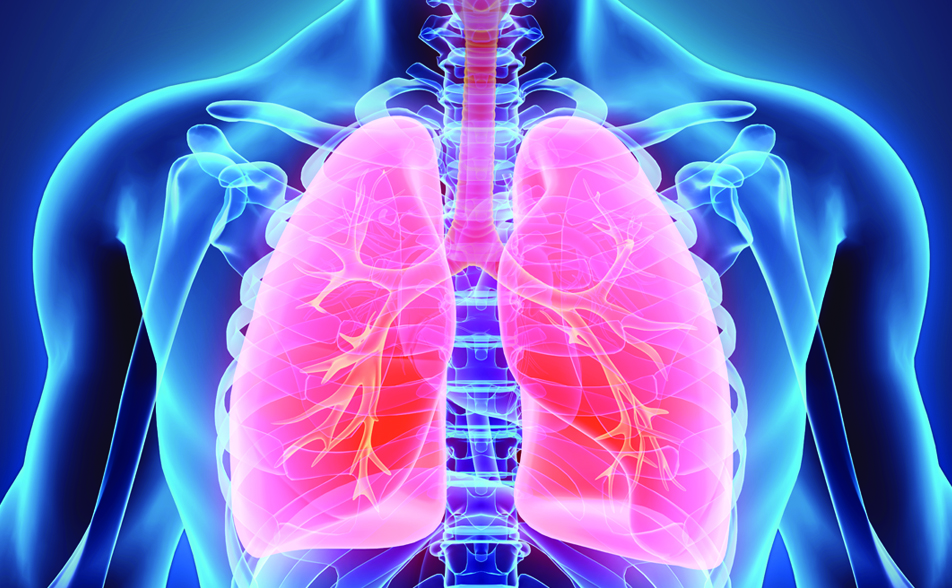 COPD – What Is It?